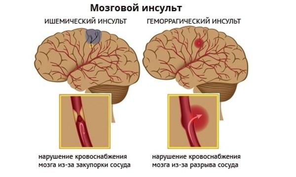 Стреляет в висок справа и слева: причины, методы лечения