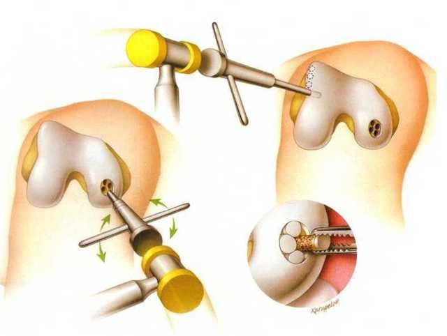 Хондропластика коленного сустава: абразивная, мозаичная и реабилитация