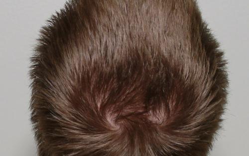 Что такое макушка, где она находится у взрослого и ребенка, какое значение теменной части головы