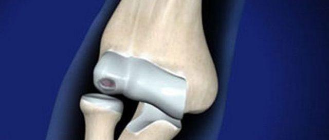 Суставная мышь коленного сустава (артремфит): что это такое, симптомы и лечение народными средствами