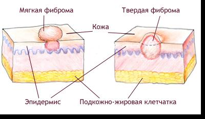 Дермофиброма на голени: эффективное лечение, причины и симптоматика заболевания