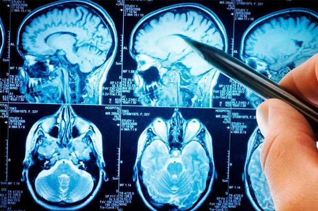 Рентген черепа ребенка и взрослого: сущность метода рентгенографии, рентгенологические методы исследования черепа и мозга, что показывает обзорная и боковая рентгенограмма, последствия рентгена