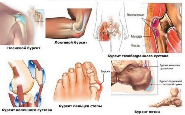 Супрапателлярный бурсит коленного сустава: симптомы и лечение синовита сумки