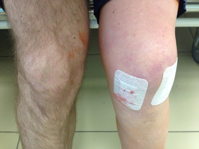 Синяки на коленях без причины и удара у девушек, женщин и детей, фото