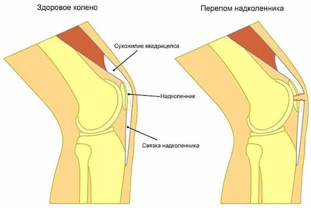 Трещина коленного сустава, чашечки и надколенника: симптомы и сроки лечения