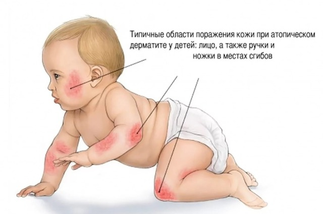 Нейродермит у детей: причины и типы, симптомы, диагностика и способы лечения
