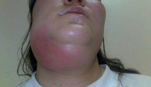 Флегмона нижней челюсти: техника вскрытия, типичные разрезы подчелюстного треугольника