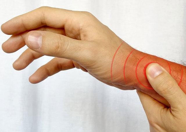 Теносиновит сухожилия подколенной мышцы: что это такое, что делать и как лечить