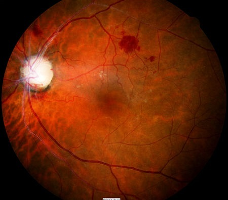 Атрофия зрительного нерва: виды, причины развития, симптомы, как видит человек