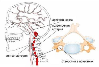 Головная боль при остеохондрозе: симптомы, что делать, средства для лечения