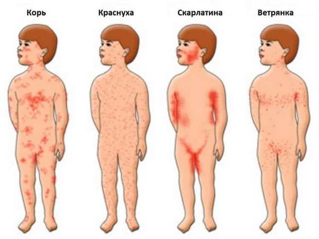 Сыпь на лице и голове у новорожденного: белые прыщики и красные высыпания у младенца