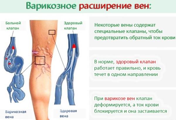 Болят и сводит икроножные мышцы при беге: симптомы, причины и лечение