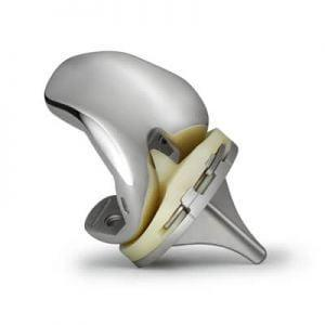 Эндопротезы коленного сустава: виды, производители, цена и стоимость