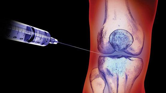 Уколы гиалуроновой кислоты в коленный сустав: цена инъекций, противопоказания, отзывы