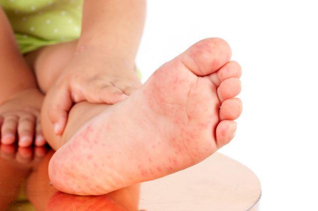 Аллергия на ногах у грудничка: красные пятна, сыпь, волдыри
