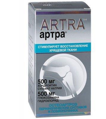 Хондропротекторы при артрозе коленного сустава: Терафлекс, Артра, Дона, Хондроксид