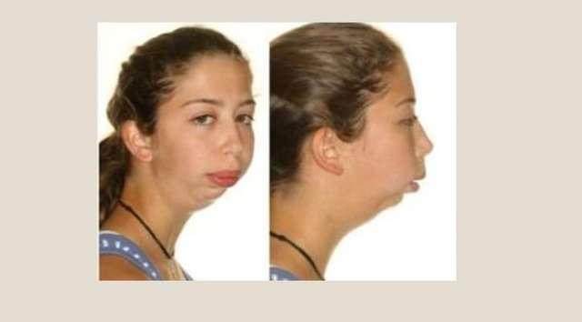 Ретрогнатия: что это такое на латинском, анатомические нарушения верхней челюсти