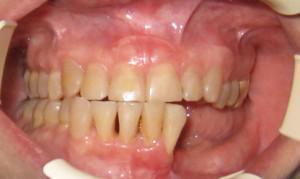 Рак челюсти: психосоматика, симптомы саркомы, как распознать, диагностика и лечение