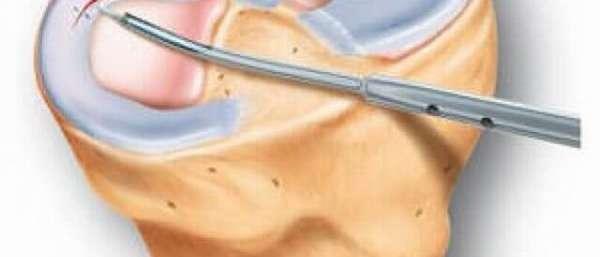 Трещина в мениске коленного сустава: симптомы, причины, диагностика и лечение
