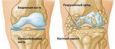 Субхондральный склероз коленного сустава: что это такое, симптомы, причины и лечение