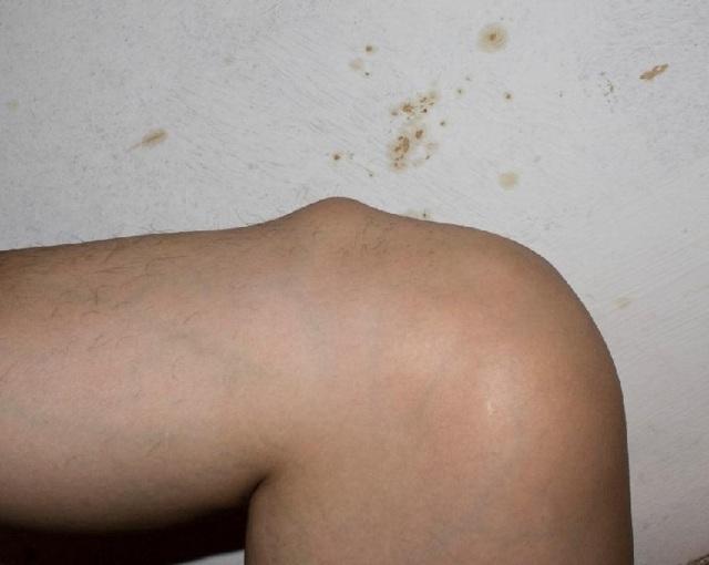 Грыжи голени: мышечная, межмышечная, фасции, симптомы и лечение, фото
