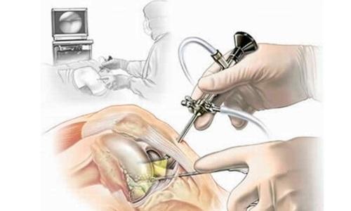 Эпидуральная и проводниковая анестезия при артроскопии коленного сустава