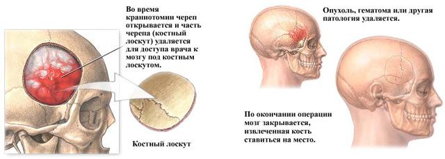 Трепанация черепа: что это такое, последствия, показания, инструменты для операции, виды, восстановление