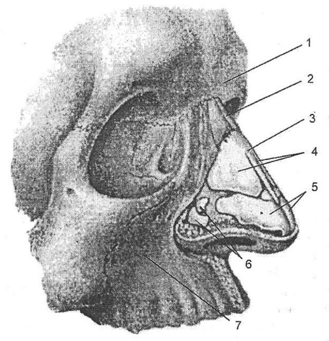 С каким носовым ходом сообщается лобная пазуха и куда она открывается, какие стенки имеет, какая ее стенка самая толстая, где находится лобная пазуха