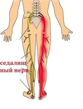 Боль в пояснице, отдающая в ноги до колен и ниже: причины, диагностика, лечение