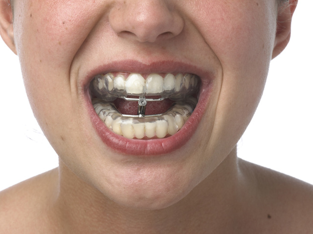 Перелом челюсти: первая помощь, коды по МКБ-10, классификация, симптомы и признаки, осложнения воспалительного характера, лечение и степени тяжести