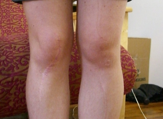 Киста коленного сустава: лечение, симптомы, причины, виды и фото