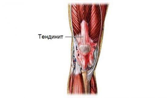 Болит колено при сгибании и разгибании: причины и лечение в домашних условиях