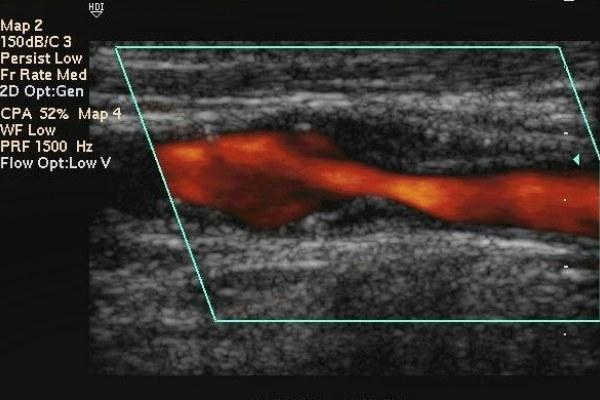 ЭХО головы: что это такое за обследование, что показывает эхограмма, как делают диагностику