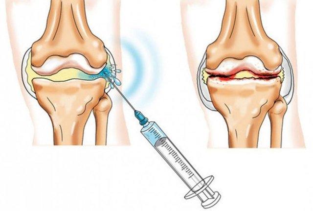 Чем лечить колени если они сильно болят: уколы, таблетки, обезболивающее, охлаждающие спреи