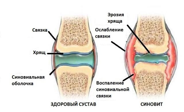 Что такое синовит коленного сустава: причины, разновидности, лечение, диагностика, профилактика
