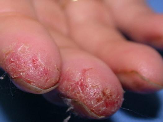 Чешутся красные пятна на коленях и под ними: псориаз, экземы и атопический дерматит