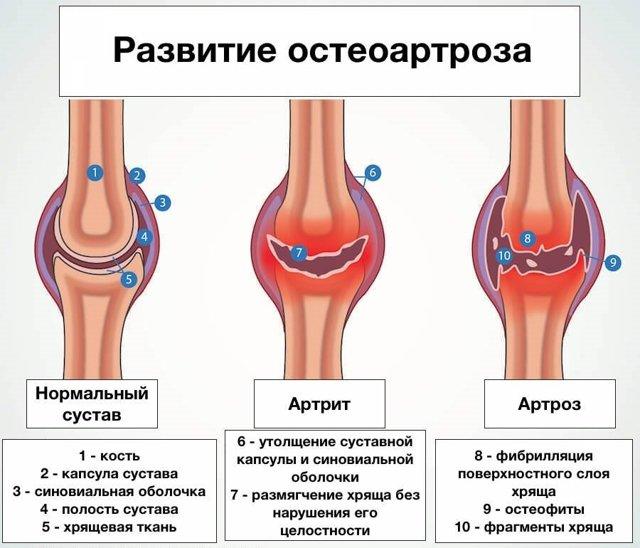 Что показывает рентген коленного сустава в двух проекциях, фото снимков при артрозе