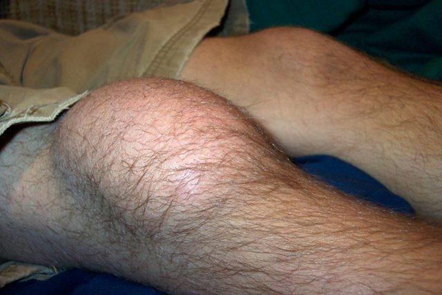Ушибы коленного сустава: все коды по МКБ-10 с подробным описанием