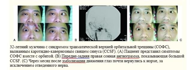 Синдром верхней глазничной щели: симптомы невралгии, признаки поражения