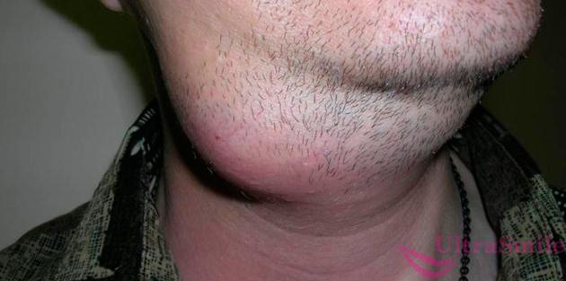 Шишка под челюстью слева, справа или посередине, причины уплотнения снаружи на нижней челюсти, на скуле и под ухом