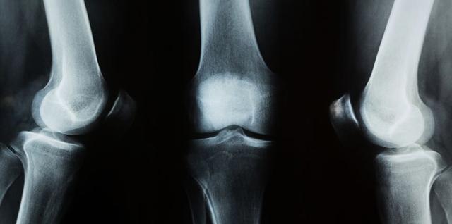 Повреждение капсульно-связочного аппарата коленного сустава