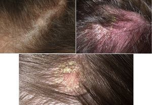Раздражение на коже головы под волосами у мужчины, женщины и ребенка: лечение