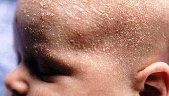 Средства от корочек на голове у ребенка: шампунь и масло; советы, чем убрать леп с головы у ребенка 2-10 лет