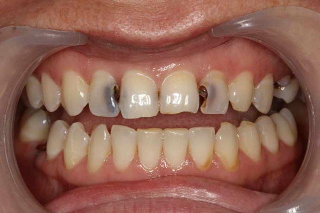 Щелкает челюсть, хрустит, скрипит и стучит: причины и лечение проблем с челюстью
