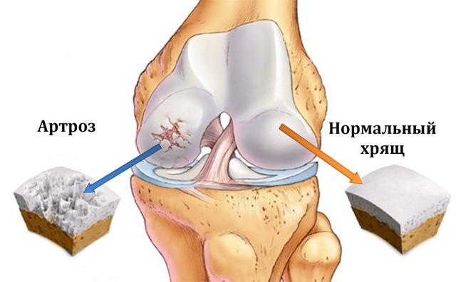Пластырь для коленного сустава при артрозе, гонартрозе, боли в колене