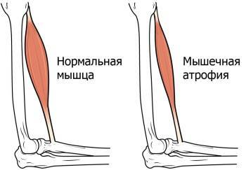Атрофия жировой ткани и мышц голени: причины, лечение, упражнения для реабилитации, фото