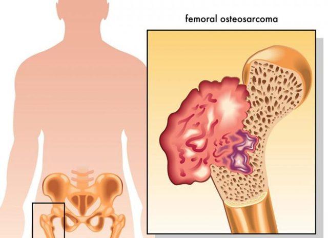 Саркома черепа: как выглядит на МРТ, причины остеосаркомы, лечение и прогноз