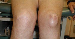 Посттравматический синовит коленного сустава: коды по МКБ-10