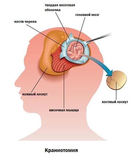 Специальные инструменты, используемые при трепанации черепа: набор хирургических инструментов для краниотомии