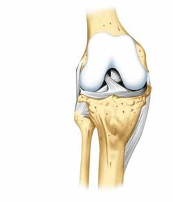 Лазеротерапия при артрозе коленного сустава: показания и противопоказания к лечению
